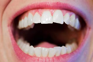 Ölziehen: Weiße Zähne?